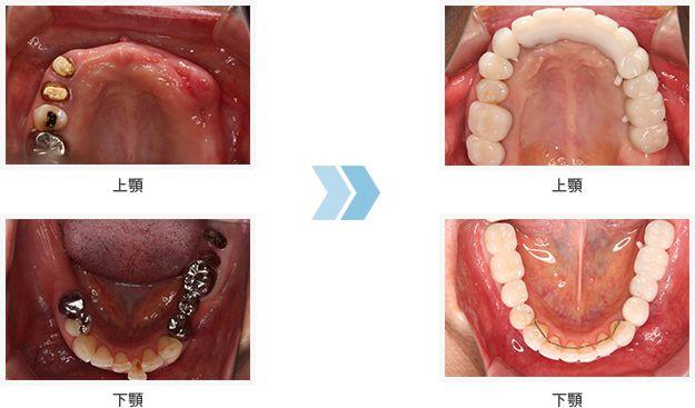implant_foto03